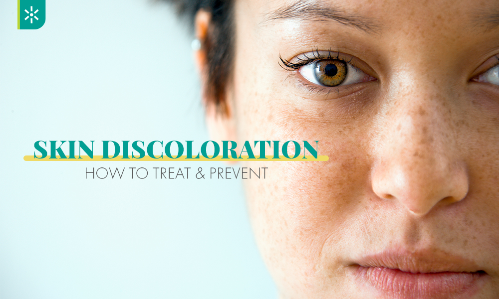 Skin Discoloration: How to Treat & Prevent | Newport ...